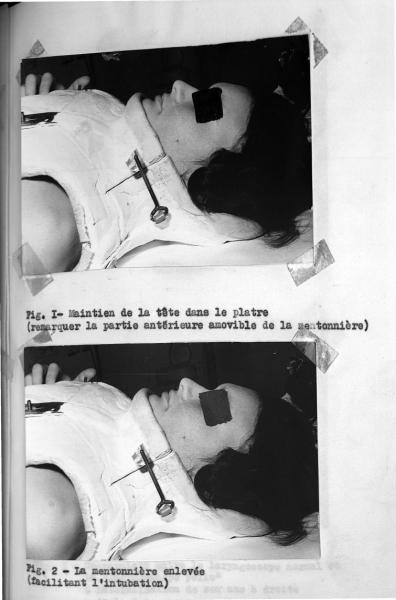 http://www.laurie-dallava.com/files/gimgs/11_dubousset-nee-chognon-anne-marie-ouvrage---problemes-danesthesie-dans-le-traitement-chirurgical-des-scolioses-edition---paris-1964.jpg