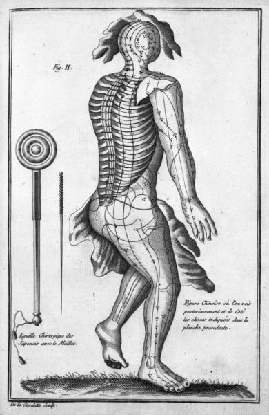 http://www.laurie-dallava.com/files/gimgs/11_dujardin-francois-ouvrage---histoire-de-la-chirurgie-depuis-son-origine-jusqua-nos-jours-edition---paris---imp-royale-1774.jpg
