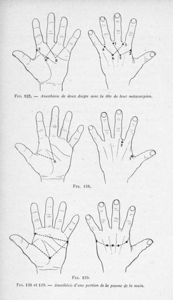 http://www.laurie-dallava.com/files/gimgs/11_fig-137-anesthesie-de-deux-doigts-avec-la-tete-de-leur-metacarpien--fig-138-et-139-anesthesie-dune-portion-de-la-paume-de-la-main---lanesthesie-regionale---avec-168-figures-dans-le-texte.jpg