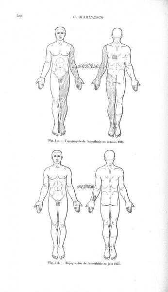 http://www.laurie-dallava.com/files/gimgs/11_fig-1c-topographie-de-lanesthesie-en-octobre-1936--fig-1d-topographie-de-lanesthesie-en-juin-1937---revue-neurologique-20e-siecle-revue---revue-neurologique-1937-vol-2.jpg