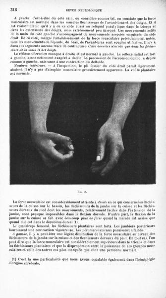 http://www.laurie-dallava.com/files/gimgs/11_fig-2-contribution-a-letude-des-localisations-motrices-dans-la-moelle-epiniere-un-cas-dhemiplegie-spinale-revue-neurologique1905.jpg