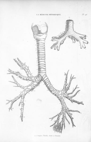 http://www.laurie-dallava.com/files/gimgs/11_larynx-trachee-artere-et-bronches-mots-cles---pneumologie-otorhinolaryngologie-orl-poumons--19e-siecle-ouvrage---la-medecine-pittoresque-edition---paris--bureau-de-la-medecine-pittoresque-1834.jpg