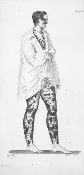 http://www.laurie-dallava.com/files/gimgs/11_memoire-et-rapports-sur-les-fumigations-sulfureuses-appliquees-au-traitement-des-affections-cutanees-edition---paris--imprimerie-royale-1816-cote---048022-graveur---dandeleux.jpg