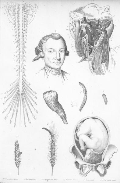 http://www.laurie-dallava.com/files/gimgs/11_moelle-epiniere-nerf-hypoglosse-position-du-foetus-homme-cornu-seigle-ergote-mots-cles---neurologie-botanique-nerfs-malformations-foetus-plantes-poisons--19e-siecle-ouvrage-paris--bureau-de-la-medecine-pittoresque1834.jpg